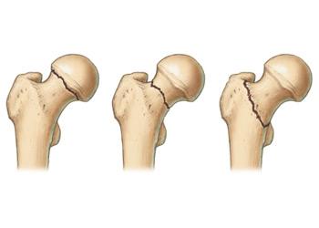 Лечение пациентов с переломом шейки бедра