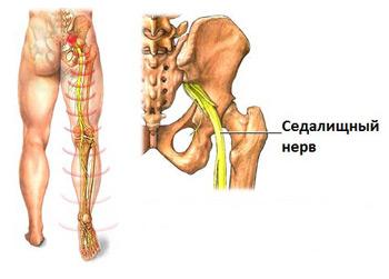 Воспаление седалищного нерва – симптомы и лечение