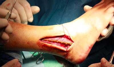 Оперирование при переломе ноги
