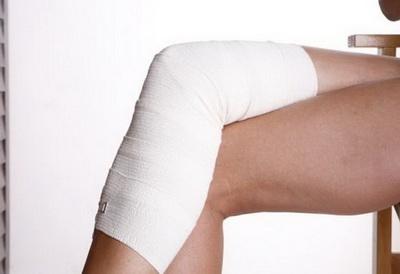 Варикозное расширение вен нижних конечностей является одной из самых распространенных форм заболевания. Прочитайте о том, как проявляется болезнь.